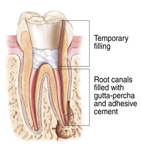 Root Canal Therapy offered at Sussex Dental