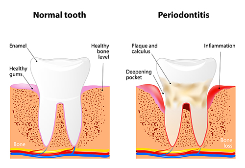Illustration of a tooth with periodontal disease, in need of scaling and root planing, at dentist office in Sussex, WI.